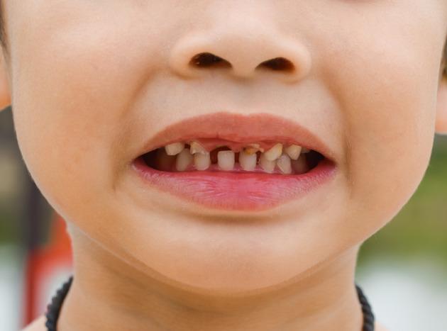 Esto es lo que le pasa al cuerpo de tu hijos cuando comen DEMASIADAS papas fritas
