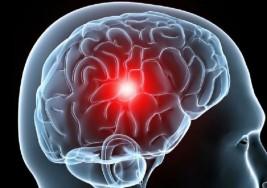 Desarrollan procesadores que podrían revertir la parálisis cerebral