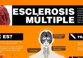 ¿Tienes esclerosis múltiple?: Estos son los síntomas