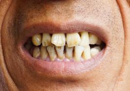 Síntomas de cáncer oral (uno de los más mortales) que nadie puede ignorar