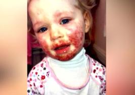Un beso de un familiar dejó el rostro de esta niña totalmente cubierto con ampollas y una enfermedad incurable