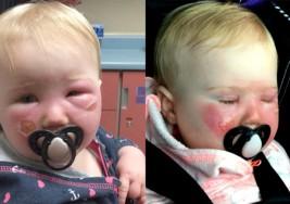 Atención padres: bebé sufre quemaduras de segundo grado utilizando este popular bloqueador solar