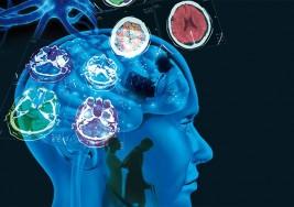 La esclerosis múltiple es la principal causa de discapacidad entre los jóvenes