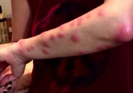 Mujer se despierta con la cara y cuerpo llenos de horribles manchas rojas con un tremendo dolor; la causa estaba en su cama