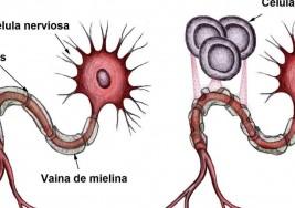 Esclerosis Múltiple ¿Cómo descartar una enfermedad que presenta síntomas similares?