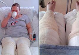 Mujer estuvo a punto de perder sus piernas por depilarse de una manera que la mayoría de nosotras lo hacemos