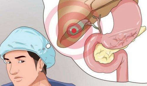 10 síntomas que te pueden alertar un problema en la vesícula biliar