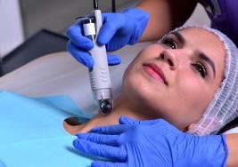 El vello en la barbilla de las mujeres puede ser el PRIMER SÍNTOMA de estas 6 enfermedades