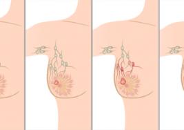 Según estudio, este hábito nocturno puede aumentar el riesgo de cáncer de mama