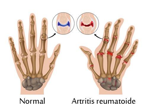 Tratamientos naturales para la artritis