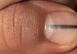 Una línea negra en tus uñas podría ser una señal de cáncer. ¿Lo sabías?