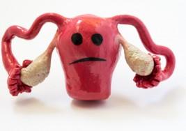No confundas los síntomas de cáncer vaginal con tu período. Utiliza estos consejos para notar la diferencia
