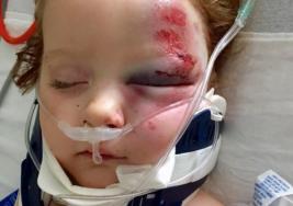 Hizo dormir a su hija de 3 años, pero los golpes y gritos desesperados de su vecino hacen que abra la puerta para encontrarse con su hijita casi sin vida