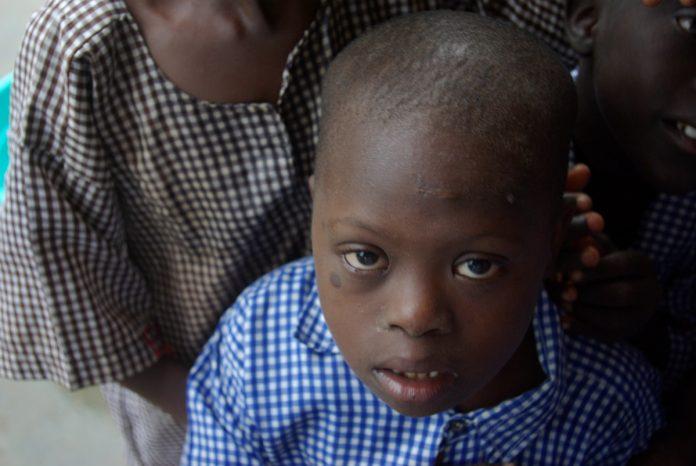 La mitad de los niños nacidos de padres con síndrome de Down no padecen la afección