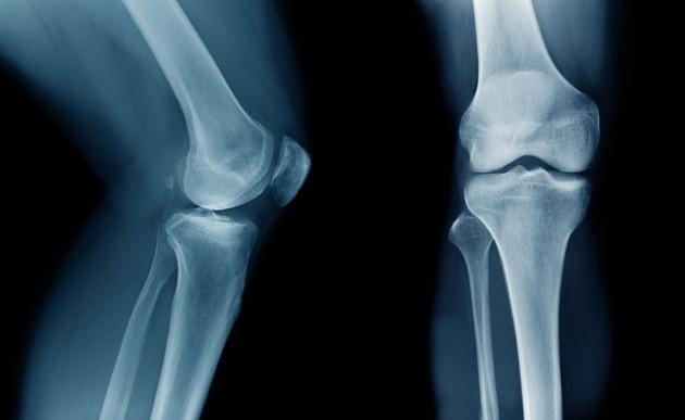 La ciencia revela que beber leche para tener huesos más fuertes NO produce el efecto que creíamos