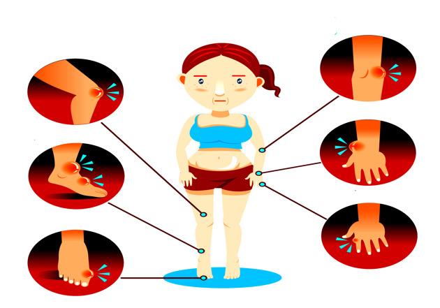 Si tienes estos síntomas, podrías estar sufriendo artritis