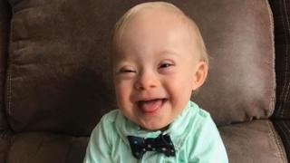 Lucas Warren, el bebé con síndrome de Down que será el rostro de la marca de comida para niños Gerber