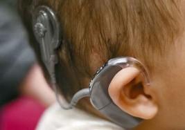 El implante coclear unilateral, la nueva tecnología contra la sordera