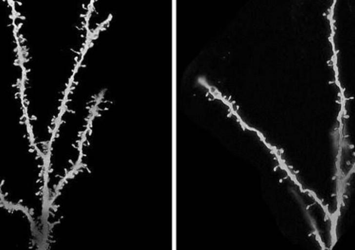 Identifican una proteína implicada en el autismo, la esquizofrenia y la demencia