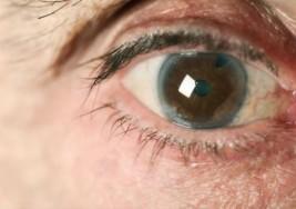 Pacientes con glaucoma en riesgo de quedar ciegos por falta de medicamentos