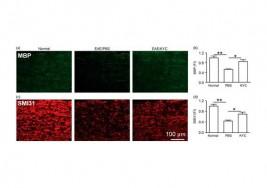 Un inhibidor de la mieloperoxidasa podría ofrecer beneficio en la esclerosis múltiple