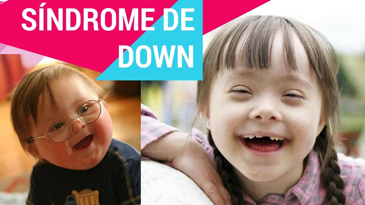 Resultado de imagen para sindrome de down