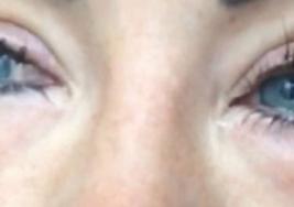 Bloguera con ceguera tras cirugía de cambio de color de ojos