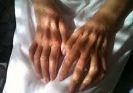 21 de junio día Mundial de la Esclerosis Múltiple ¿Qué es el ELA y cómo son sus síntomas?