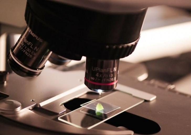 Detectan un gen que vincula el síndrome de Down con el Alzheimer precoz