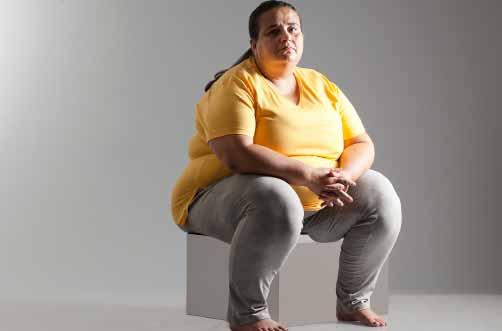 Sobrepeso en la edad madura adelanta la enfermedad de Alzheimer