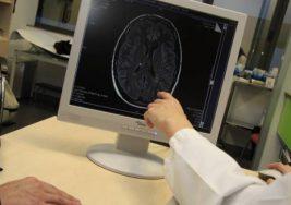 Hallan una clave molecular que frena la esclerosis múltiple
