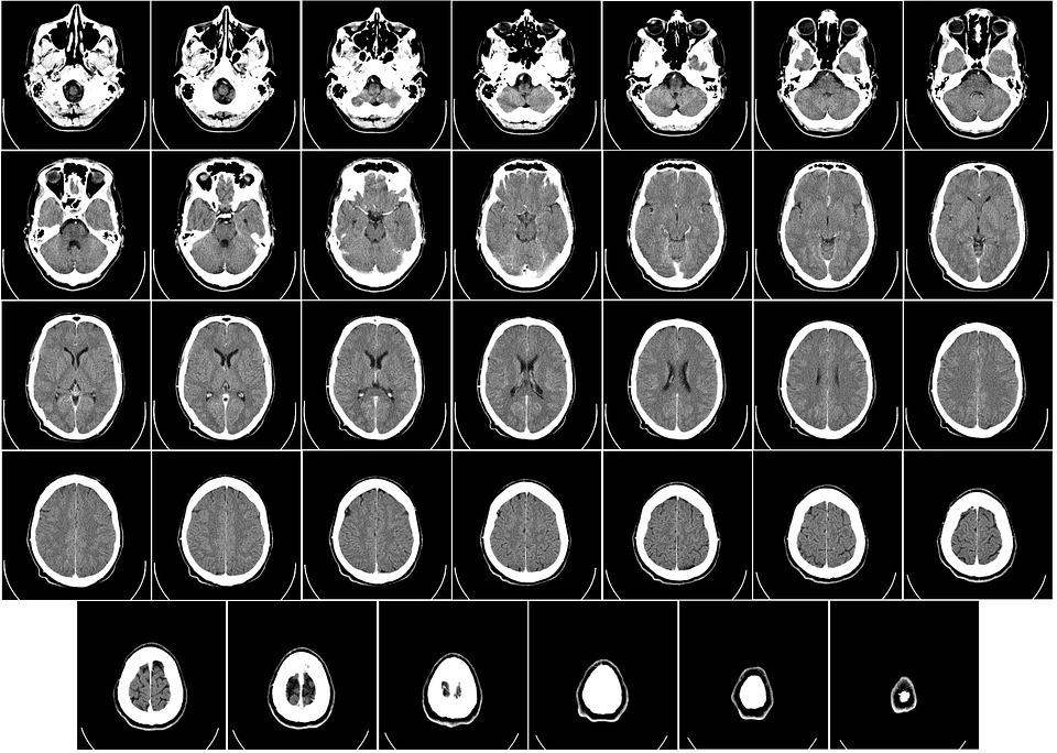 13 nuevos casos de parálisis cerebral en 2018