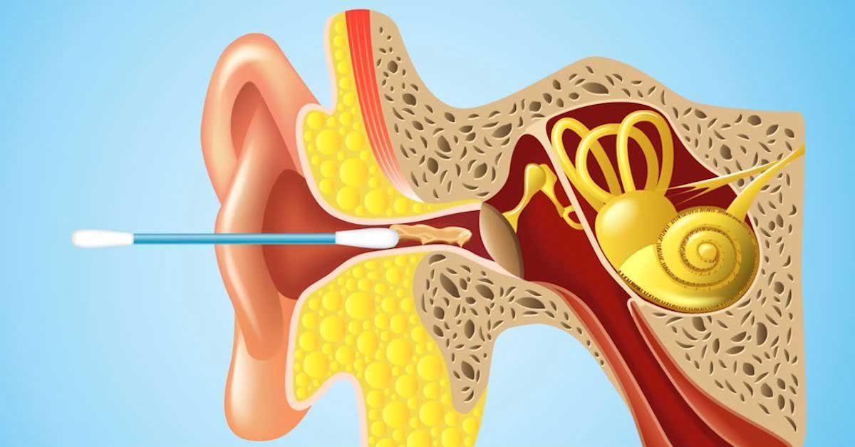 Limpiarse los oídos con hisopos