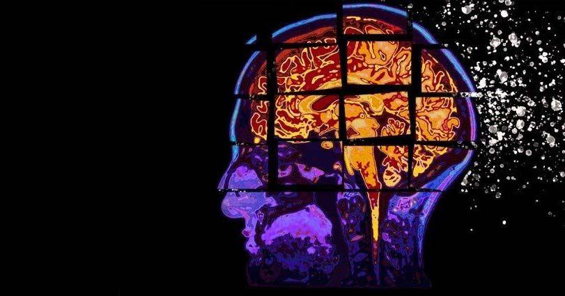 El reto científico para combatir el alzheimer