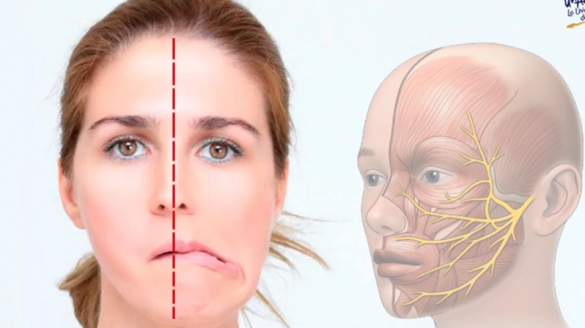 ¿Cuáles son las causas que originan la parálisis facial?