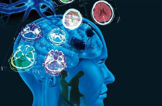 Un fármaco mejora habilidades de pensamiento en la esclerosis múltiple avanzada