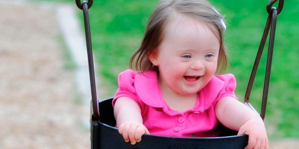 ¿Existen grados en el síndrome de Down?