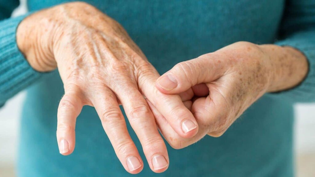 La artritis reumatoide es una enfermedad que 'te enseña a vivir con el dolor'